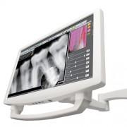 Монітори для стоматології